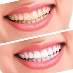 Teeth Whitening Kit Bleaching System Bright White Smiles Teeth Whiteni – lanbena.official Best Teeth Whitening Kit, Teeth Whitening System, Charcoal Teeth Whitening, Natural Teeth Whitening, Skin Whitening, Listerine, Teeth Implants, Smile Teeth, Dental Teeth