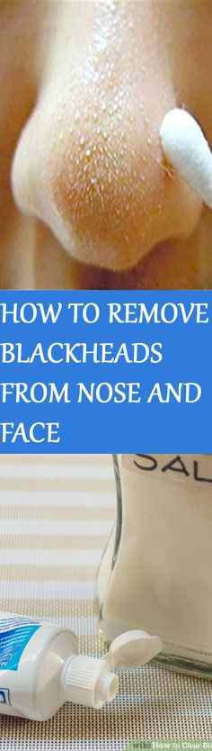 HOW TO REMOVE BLACKHEADS FROM NOSE & FACE – INDIAN SECRET! Click the picture for instructions :D