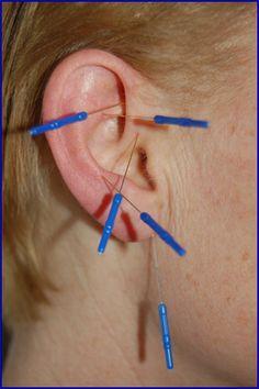 Иглоукалывание В Уши Для Похудения Отзывы. Эффективно «заглушаю» точки голода и вызываю чувство сытости, чтобы похудеть: моя методика (-7кг неделя)