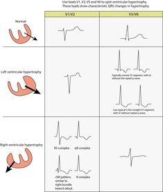 Learn about left ventricular hypertrophy (LVH) with emphasis on ECG features, clinical characteristics, causes and treatment. Coarctation Of The Aorta, Ventricular Septal Defect, Hypertrophic Cardiomyopathy, Aortic Stenosis, Advanced Nursing, Interventional Radiology, Medicine Notes, Cardiac Nursing, Medical Information