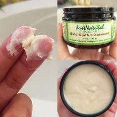 Scalp Spot Cream | Men's Hair | Just Nutritive
