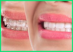 Whether you're looking for Tooth or cheap teeth whitening Sydney, A Better Smile offers professional teeth whitening at our Dental clinics in Sydney or in the comfort of your home. Contact Us Today for teeth replacement St Leonards. Teeth After Braces, Impacted Wisdom Teeth, Beautiful Teeth, Tooth Replacement, Smile Dental, Dental Center, Dental Bridge, Dental Crowns, Good Smile