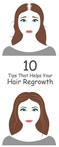 10 Best Tips for Hair Regrowth Naturally.