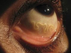 Loa Loa: a worm that lives under human skin, but can only be seen when crawling through the eye