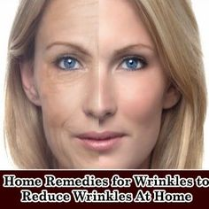 How to treat wrinkles at home inexpensively home remedies, wrinkl reduc, treat wrinkl