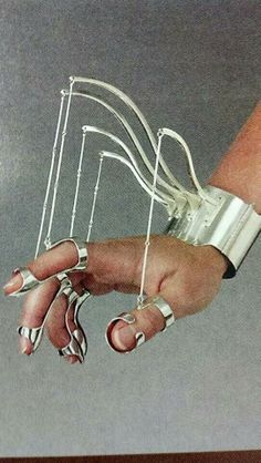 Splint for thumb radial nerve surgery agree