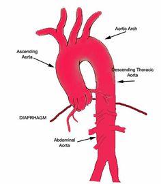 Aorta Schematic