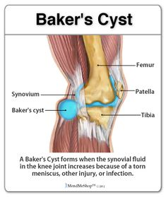 Knee synovitis read httpepainassistsports injuriesknee bakers cyst a ganglion cyst or synovial cyst can occur in any joint in the ccuart Image collections