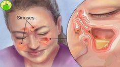 Kill Sinus Infection Within Minutes.Kill Sinus Infection Within Minutes.Kill Sinus Infection Within Minutes.Kill Sinus Infection Within Minutes. Sinus Remedies, Cold Remedies, Natural Health Remedies, Natural Cures, Ayurvedic Remedies, Allergy Remedies, Infection Des Sinus, Stress, Migraine