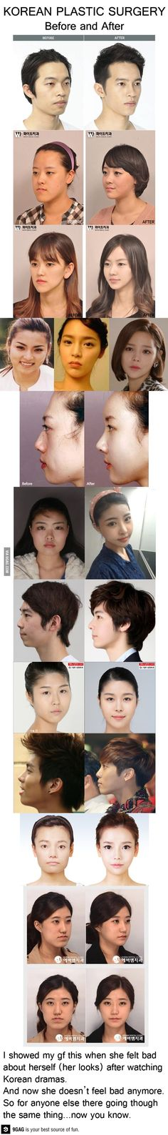 plastic surgery - Celebrity Plastic Surgery Before and After