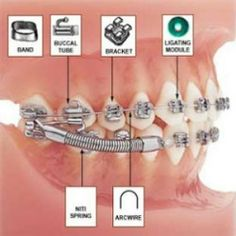 HYGIENE TIPS TO ORTHODONTIC PATIENTS