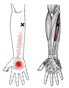 Palmaris Longus | The Trigger Point & Referred Pain Guide