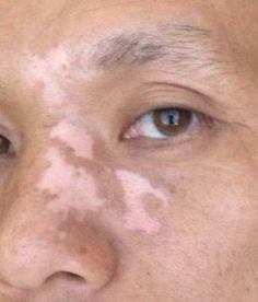 Wonderful vitiligo repigmentation success story!