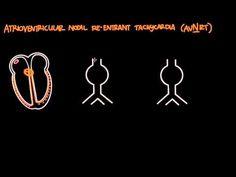 ▶ Atrioventricular reentrant tachycardia (AVRT) & AV nodal reentrant tachycardia (AVNRT) - YouTube