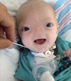 Baby Born Without A Nose Is So Cute, He <---- we found Voldemort! Little Boy Names, Little Boy And Girl, Little Boys, Beautiful Children, Beautiful Babies, Faith In Humanity Restored, Choose Life, Pro Choice, Baby Born