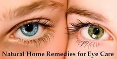 Natural Home Remedies for Eye Care | MedReeh