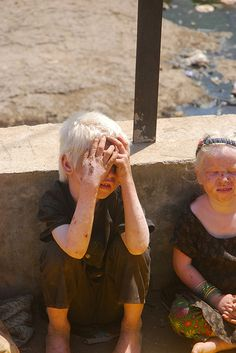 The Albino Family At The Foot of The Malangad Mountains
