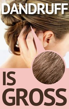 Top 5 Home Remedies for Dandruff