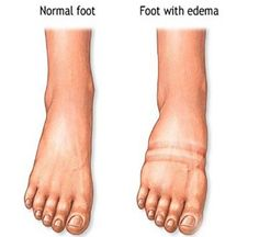 Fluid Retention Before After | #homeremedies #waterretention #health