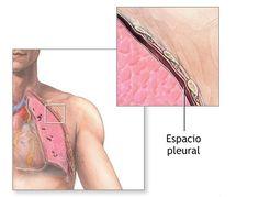 Empiema polmonare: sintomi diagnosi e cura