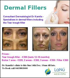 Get Younger Looking Face on Christmas with Botox Specials at Lanu Medi Spa Facial Fillers, Dermal Fillers, Tear Trough, Spa Specials, Christmas Offers, 18 Months, Clinic