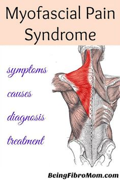 Many people with fibromyalgia may also experience Myofascial Pain Syndrome (MPS). It is a chronic pain disorder that effects the fascia (connective tissue that covers the muscles).