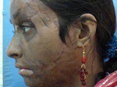 Robin Tunney Facial Scar 98