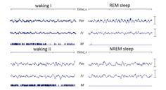 Rapid Eye Movement Sleep (REM sleep, REMS)-- is a unique phase of mammalian sleep characterized by random movement of the eyes, low muscle tone throughout the body, and the propensity of the sleeper to dream vividly. This phase is also known as paradoxical sleep (PS) & sometimes desynchronized sleep because of physiological similarities to waking states, including rapid, low-voltage desynchronized brain waves. Electrical and chemical activity regulating this phase seems to originate in the…