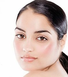 Natural Home Remedies For Whiteheads: Treatments and Cure For Whiteheads