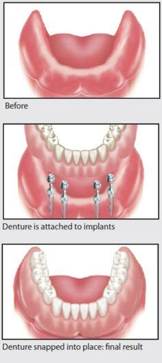 Mesa AZ Dentist 85213: Dental Implant Supported Dentures Mesa AZ Cosmetic...