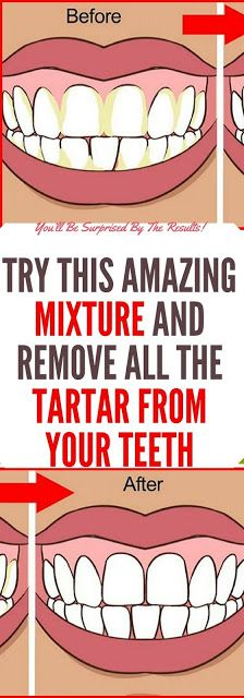 Try This Amazing Mixture And Remove All the Tartar From Your Teeth!