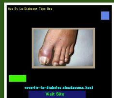 Que Es La Diabetes Tipo Dos 191858 - Aprenda como vencer la diabetes y recuperar su salud.