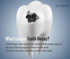 What causes Tooth Decay? Tooth Decay is the result of an infection with certain types of bacteria that use sugars in food to make acids. Overtime, the acids can make a #cavity in the tooth. #toothdecay. http://www.novadenttly.com/