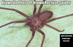 Here you have a blown up photo of a Brown Recluse Spider. These spiders are almost never bigger than a U.S. Quarter and most are smaller.