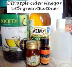 Make your own Apple Cider Vinegar Toner to Cure Acne: green tea, tea tree oil, honey, lemon, ACV