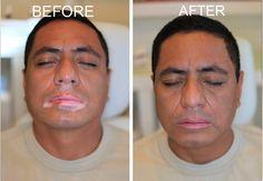 Can Vitiligo Be Cured Naturally