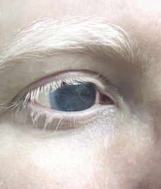 Albino eyes will appear very red when a light is shown into them.