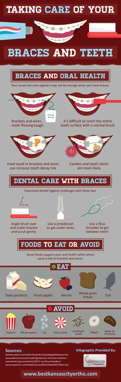 Taking Care of Your Braces and Teeth #infographic #dental