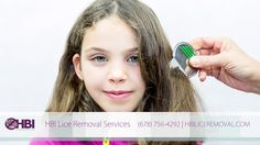 Here are the 5 most popular natural treatments for head lice, as well as ways to avoid getting it. Lice Removal Service, Removal Services, Lice Prevention, How To Remove, How To Get, Natural Treatments, Ebay, Hair, Popular