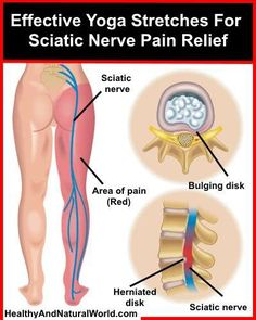 Effective Yoga Stretches For Sciatic Nerve Pain Relief. These stretches can be extremely effective for sciatic nerve pain relief - just follow the instructions in this helpful video.