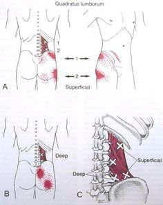 Important Muscles Involved in Lower Back Pain - Part 1 : Quadratus Lumborum psoas trigger points Hip Pain, Low Back Pain, Fitness Workouts, Acupuncture, Acupressure Therapy, Referred Pain, Shiatsu, Trigger Point Therapy, Qi Gong