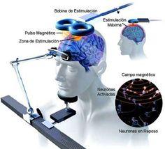#265 Neuroestimulación Magnética Transcraneal en #Fibromialgia