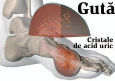 Vezi de ce apare GUTA si cum poate fi tinuta sub control Good To Know, Diabetes, Natural Remedies, Health Tips, Cancer, Health Fitness, Healing, Pray, History