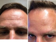 Before / After Botox Boise ID | VitaNovu Med Spa