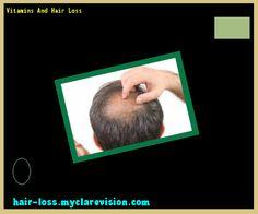 Vitamins And Hair Loss 124853 - Hair Loss Cure!