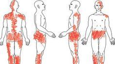 Menschen mit Fibromyalgie gelten schnell als eingebildet Kranke. Zu den Symptomen gehören teils starke Schmerzen in mehreren Körperregionen, Druckempfindlichkeit und Schlafstörungen