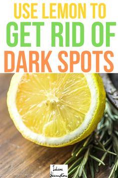 Sun Spots On Skin, Dark Spots On Legs, Brown Spots On Hands, Dark Spots On Skin, Dark Skin, Smoky Eye, Spots On Forehead, Dark Under Eye, Skin Rash