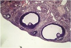 Section of ovary from Curcumin treated (100mg/kg) animal showing large…