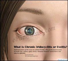 What is Chronic Iridocyclitis or Uveitis?