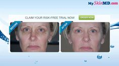 Click The Link To Claim Your Free Trial http://myskinmd.com/go/get-leor-skincare-free-trial/  Check Out Leor Skin Care Customer Review Here http://myskinmd.com/leor-skin-care-review-take-more-than-10-years-off-your-skin-with-leor-skin-care/   Leor Skin Care, Leor Skin Care Review, Leor Skin Care reviews, Leor Skin Care  Free Trial, Buy Leor Skin Care, Leor Skin Care wrinkle reducer review, Leor Skin Care anti aging system, Leor Skin Care skin therapy, Leor Skin Care ingredients